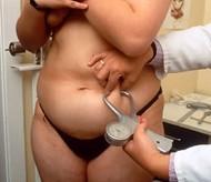 obesity (2)